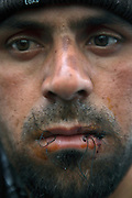 Mouhamed Rached from Kasserine shows his stitched lips. Rached was in hunger strike from January 24 when decides on January 27 to sew his lips in protest against the interim governement. Tunisians from province camp under the the Prime Minister's office demanding the dissolution of the interim governement.