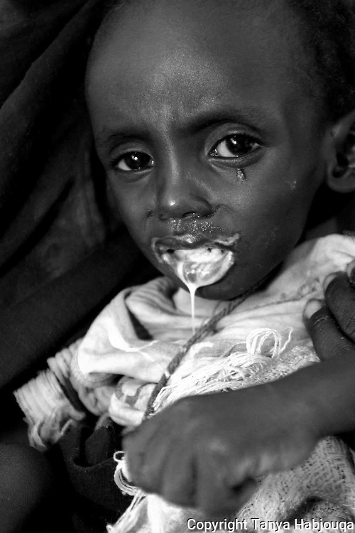 Child suffering from malnutrition after his family fled Darfur violence. He arrived at the IMC nutrition center and passed away a few days after this photo was taken.