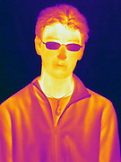 A Thermogram of a boy.  This image is part of a series and has a corresponding visible light image.   The different colors represent different temperatures on the object. The lightest colors are the hottest temperatures, while the darker colors represent a cooler temperature.  Thermography uses special cameras that can detect light in the far-infrared range of the electromagnetic spectrum (900?14,000 nanometers or 0.9?14 µm) and creates an  image of the objects temperature..