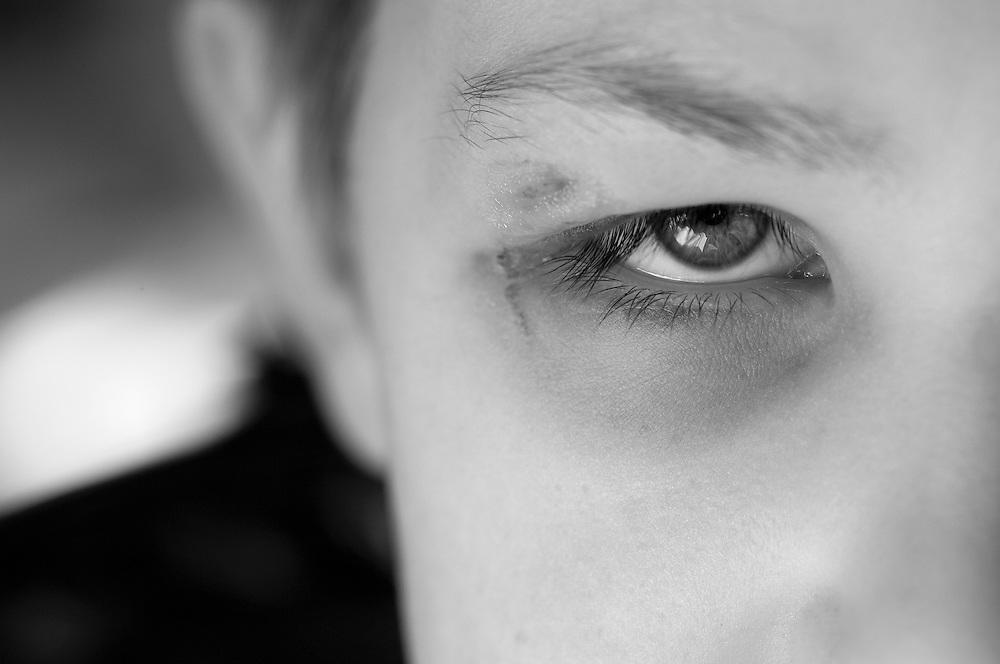 Child with black eye