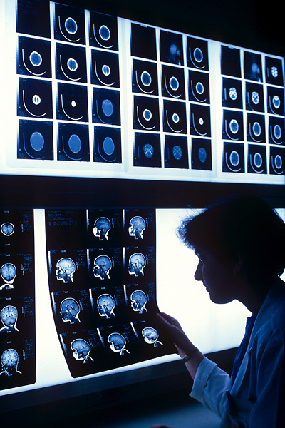 Stock photo of MRI scans on a light wall