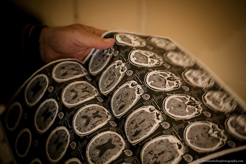 (2013)  Father Hermann examines at a scan of his brain. He suffers from cerebral atrophy and diabetes. In the last two years, his strength has been fading, today he is hardly able to continue his work.