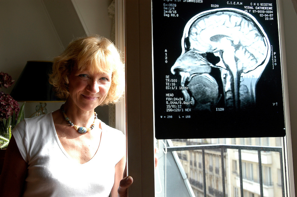 "Catherine Vidal, neurobiologist, research director at the Pasteur Institute and author of the book ""Cerveau Sexe et Pouvoir"" with a detailed X-Ray of her brain..Paris, France. 26 May 2005.Photo © J.B. Russell"