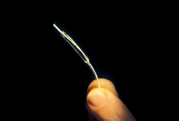 Stock photo of a balloon angioplasty.