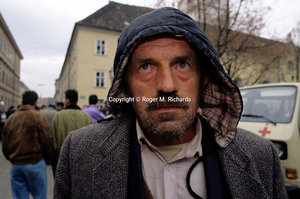 Newly released Bosniak prisoner from the notorious Bosnian Serb concentration camp called Manjaca, in Karlovac, Croatia, October 1992.
