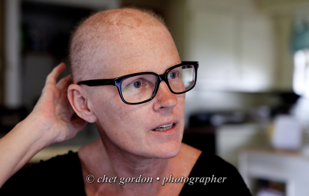 Barbara Gallagher discusses her hair loss due to chemotherapy and radiation treatment during an interview in her Florida, NY home on Thursday, June 27, 2013. Gallagher, who suffers from stage four breast cancer, is an advocate for medical marijuana. She'd like to see the state legalize medical marijuana, which would offset the side effects she has from the opiate based medications she's currently using.