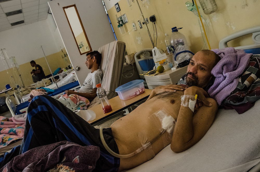 CARACAS, VENEZUELA - JANUARY 22, 2015: AIDS patient, Franco Bigotti, 47, rests in a state-run hospital outside of Caracas. A few months ago, Mr. Bigotti and fellow AIDS patients at this hospital went nearly three months without their antiretroviral medicines, that the government provides them free-of charge when they're available.  Doctors at the hospital said that because of the shortages, they are working with a bare minimum of supplies, and that patients often die because of a lack of resources. Despite being a petro-state with one of the largest oil reserves in the world, basic and advanced medical supplies from gauze and surgical gloves, to heart stints, are difficult to find in hospitals and pharmacies across Venezuela.