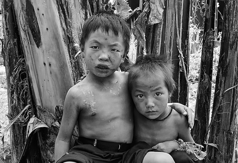 2 of 3 survivers, Yukuh 7 years old and Yahvuh 6 years old, injured when a boy from Vientiane who did not know what a bombie looks like threw one down causing it to explode killing two boys aged 6 and 7 years. in Ban Gnoy, Xieng Kuang, Laos.