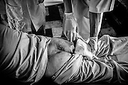 Doctors check a bed ridden patients for bed sores.