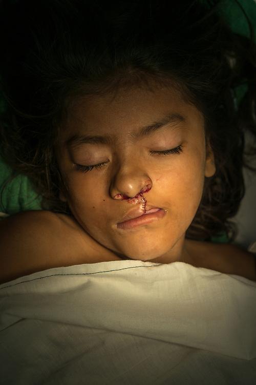 Maria Francis Aleman Guardado, 11, following surgery for her cleft lip from Central American Medical Outreach volunteer plastic surgery team at Occidente Hospital in Santa Rosa de Copan, Honduras Feb. 20, 2017. Photo Ken Cedeno