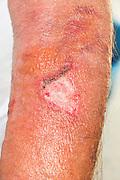 A man with an infected wound on his arm caused by a sloppy removal of an infusion needle. Model Release Available