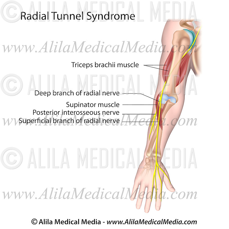 Radial tunnel syndrome | Alila Medical Images