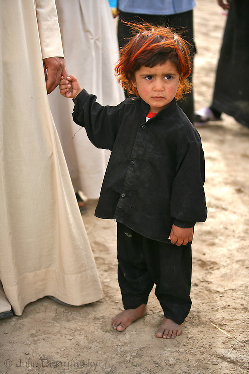 Marshland Arab Girl in Maysan Province with hair turned red from lice killing medicine