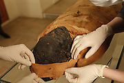 """GEORGES LABIT MUSEUM, TOULOUSE, FRANCE - MARCH 03 - EXCLUSIVE : A view from behind of the Egyptian mummy with the hands of the nurses taking the bandages off the head on March 3, 2009 in the Georges Labit Museum, Toulouse, France. The Egyptian mummy arrived in Toulouse in 1849, encased in a sarcophagus labelled """"In-Imen"""" from the 7th or 8th century BC. It is preserved at the Labit Museum since 1949. The mummy is now the subject of a very rare tissue sampling operation to determine its datation.  (Photo by Manuel Cohen)"""