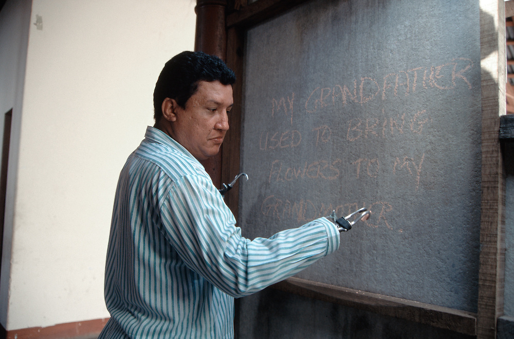 Enmanuel Alonso, who lost his hands in Nicaragua's civil war, writes on a board in León, Nicaragua.