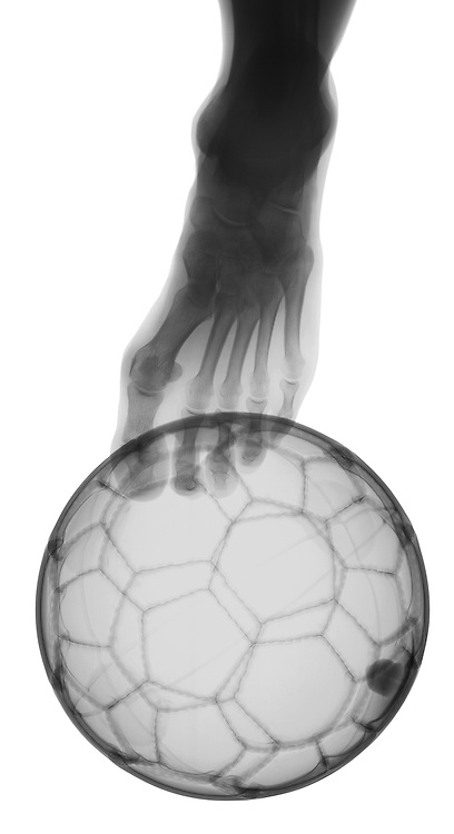 X-ray image of a soccer kick (black on white) by Jim Wehtje, specialist in x-ray art and design images.