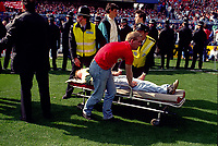 A Liverpool Fan is Stretchered away to a Ambulance<br />The Tragic FA Cup Semi Final between Liverpool Vs Nottingham Forest where Sadly 96 Liverpool fans lost their lives because of Overcrowding at the Hillsborough Stadium Sheffiled 15th April 1989<br />PHOTO ROBIN PARKER FOTOSPORTS INTERNATIONAL
