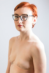 Emma McCauley, 26, of Barking, East London had to undergo a double mastectomy just weeks after losing her mother to breast cancer, discovering she herself had breast cancer and keeping it a secret whilst caring for her mother in her final weeks. London, July 31 2019.