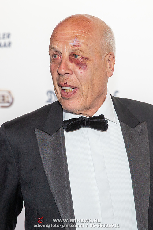 NLD/Hilversum/20190902 - Voetballer van het jaar gala 2019, Jan Smit met een blauw oog
