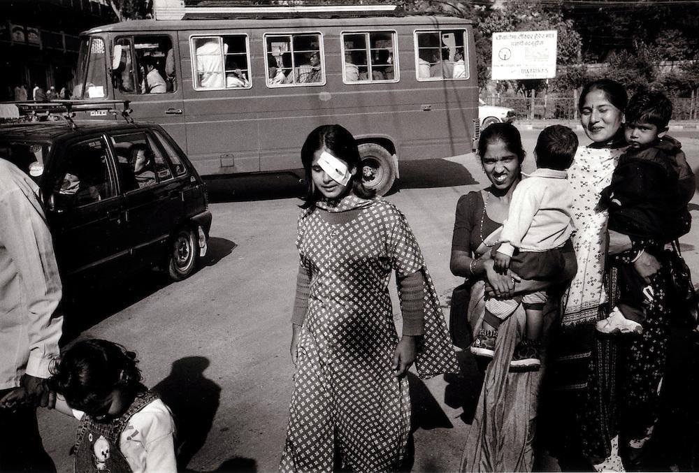 Corneal Transplantation in Nepal