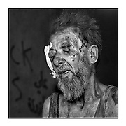 Faces of Mosul<br /> <br /> A collection of images from 4 time Pulitzer prize winning photographer Carol Guzy, gives us a glimpse into the faces of those affected by the fierce conflict with ISIS in Mosul. Wounded and weak, most who survived now face an uncertain future in the limbo of IDP camps. Shattered lives, lost loved ones and escape from the rubble of collapsed homes and the evil of ISIS doctrine, leaves scars of emotional trauma even more difficult to heal. The war in Mosul is over, but the humanitarian crisis continues.<br /> <br /> osul, Iraq - A man receives emergency medical care from Global Response Management at a Trauma Stabilization Point. Civilians, many injured and weak, flee as the fierce battle with ISIS continues in West Mosul amid ruins of the Old City. <br />  &copy;Carol Guzy/zReportage.com/Exclusivepix Media