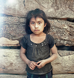 Trinidad Andrés Vargas, seven years old. She lives in the village of Agua Escondida, San Antonio along with her mother, father and seven brothers and sisters. According to the mother Trinidad has always been malnourished. Her parents has work three days a week during the coffee harvest in December  and January. They earn around 3 USD per day. During rest of the year, the father are a day laborer looking for temporary work on local farms. During coffee season the family can eat beans, tortillas, herbs and can afford to eat one chicken a month. The rest of the year their diet consist of coffee and tortillas.