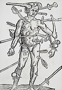 Wundenmann (Wound-man) showing positions for ligation of arteries or for blood-letting. Woodcut from a book on field surgery, 1593.