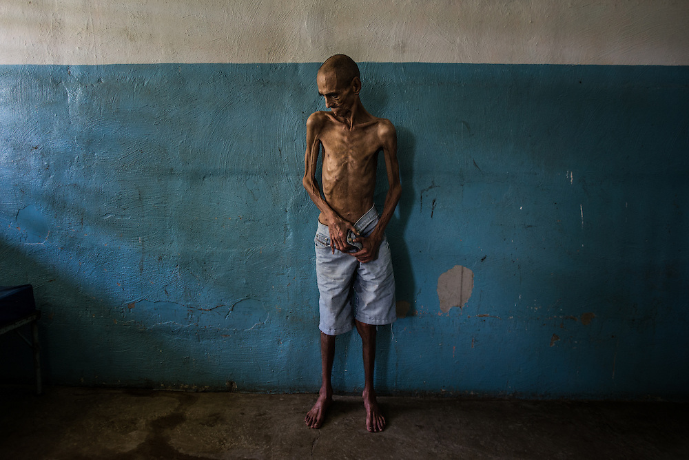 BARQUISIMETO, VENEZUELA - AUGUST 25, 2016: Schizophrenic patient, Omar Mendoza poses for a portrait in his hospital room. Omar is badly malnourished, and only weighs 35 kilos.  He often complains of being hungry and asks nurses for more food.  His weight dropped to 32 kg in June, but the nursing staff have been feeding him as many extra portions as they can spare to help him gain weight.  Over half of male patients at El Pampero are underweight. The economic crisis that has left Venezuela with little hard currency has also severely affected its public health system, crippling hospitals like El Pampero Psychiatric Hospital by leaving it without the resources it needs to take care of patients living there, the majority of whom have been abandoned by their families and rely completely on the state to meet their basic needs. The hospital has not employed a psychiatrist for over two years. The halls are filled with sounds of patients crying or screaming, and an overpowering stench of urine and feces. There is a shortage of food, and drugs used to combat bipolar disorder, epilepsy, schizoaffective disorder and chronic anxiety are now in short supply, as are numerous sedatives and tranquilizers needed to care for patients. PHOTO: Meridith Kohut