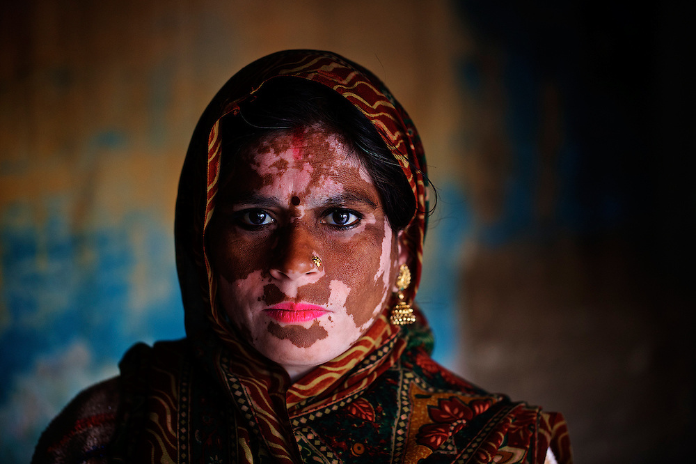 Close-up of a woman suffering from vitiligo skin disorder