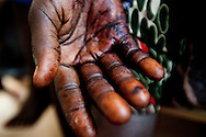The hand of a Murle woman shot in the elbow as she was entering her house with her children. The police suspect she was shot by Jie trying to avenge the death of one of their tribe in Jonglei state, Southern Sudan.