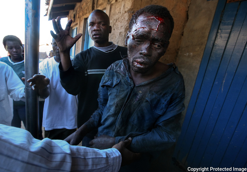 A man who was hit on the head with a hoe and beaten by an angry crowd, is helped to hospital by good samaritans. (The photographers transported him to hospital.) Looting by ODM supporters sparked riots in the Mathare slums, pitting two groups against each other across a barricade. The ODM supporters were later pushed back by Kikuyu and other tribes angry about looting.