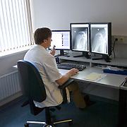 Nederland Rotterdam  25-08-2009 20090825 Foto: David Rozing .Serie over zorgsector, Ikazia Ziekenhuis Rotterdam. Afdeling radiologie, radioloog beoordeelt rontgenfoto's op eventuele afwijkingen ziektebeelden en spreekt zijn bevindingen in.Op foto is een gewricht, de schouder, deel bovenlijf, deel bovenlichaam  bot botten te zien. Department radiology, radiologist examens x ray x-ray images for abnormalities syndrome deseases. on x ray: bone bones joint shoulder .Foto: David Rozing ....Holland, The Netherlands, dutch, Pays Bas, Europe,medical science,ziektekosten,zorgverleners,zorgverlening