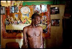 Sierra Leone War Amputee