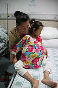 GUANGZHOU, CHINA - JUNE 18: (CHINA OUT) <br /> <br /> Young Girl With Ovarian Malignant Teratoma<br /> <br /> Han Bingbing, a 15-year-old girl with ovarian malignant teratoma, lays on sickbed at Fuda Cancer Hospital guangzhou on June 18, 2014 in Guangzhou, Guangdong province of China. Han Bingbing, a 15-year-old girl in Heilongjiang, has been diagnosed with ovarian malignant teratoma in 2009, which makes her belly grows bigger and bigger. Han Bingbing was accepted by Fuda Cancer Hospital guangzhou after so many times being rejected by other hospitals. The fee of curing Han Bingbing's disease is around 2000,000 Yuan <br /> ©Exclusivepix