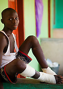 Dawoda Idrissu, 17, sits at the guinea worm case containment center in Savelugu, northern Ghana, on Friday March 9, 2007. A parasite transmitted through water, guinea worm emerges from the host's body nine months after drinking contaminated water. Measuring up to 1 meter, it can only be pulled out a few cm every day to prevent it from breaking inside the host's body. Despite a widespread eradication program Ghana has the second largest number of cases in the world - after Sudan..