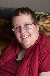 1/27/15 2:17:09 PM -- Louisa, KY, U.S.A  -- Cheryl Castle, a recent recipient of the high-tech device, can now do many tasks she was unable to do when her epileptic seizures became more severe and more frequent. Now she's getting back to a normal life.<br /> <br />  --    Photo by Jonathan Palmer, Freelance