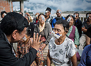 Kalimpong Eye Camp 2016. Dr Sanduk ruit and his Tilganga opthalmic team working with Kalimpong eye centre staff and monks from nearby Lava Monastary. <br /> Chandra Maya Rai, 54, husband Suresh Rai from Bhalukhop Kalimpong lives 3 hours drive from KalimpongDeaf mute she has bilateral cataracts. Blind in right eye for 1 year and blind in left eye for 3/4 monthsChamdra does all of the house chores so she has become very handicappedShe has the additional burden that her daughter, who died, has left her four children under her mother's care. Children are 13, 11, 9 and 7.
