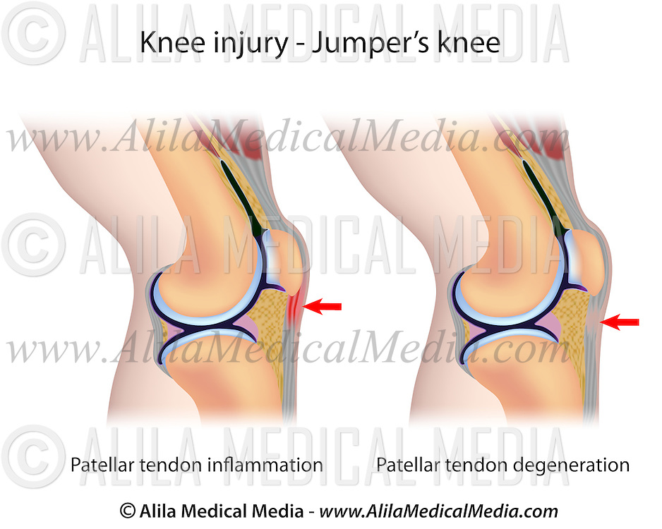 Jumpers Knee Anatomy Alila Medical Images