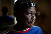 David Raphael, 35, is showing the scars left on his face by a bomb blast on 24th December 2010. The explosion damaged the Sacred Heart of Jesus, a Christian Catholic church located in the Christian-dominated neighbourhood of Kabong, Jos, Plateau State, Nigeria.