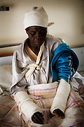 Kerit Chivake, 64 years old from Gutu North District had both arms broken by ZanuPF militia. ..She was passed on the side of the road by a truck full of youths who demanded to know who she had voted for in recent elections. Upon finding out she had voted for the rival MDC faction she was set up by the youths who beat her with batons, stones and kicked her as she lay helpless and defenceless on the ground. ..She was then left until resuced by sympathetic villagers who had her bnrought to a private clinic for treatment.
