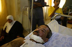 Hameed Saeed, 39, recovers inside the al Kharkh Hospital, Baghdad, Iraq, Aug. 8, 2003. Saeed, a taxi driver, was thrown through the windshield of his car which was parked next to the Jordanian embassy when a car bomb exploded in front of it the day before, killing 11 people.