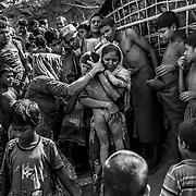 A young boy victim of a landslide in the Rohingyas refugge camp of Balukhali. Since the end of august 2017, the beginning of the crisis, more than 600,000 Rohingyas have fled Myanmar to seek refuge in Bangladesh. Cox's Bazar -october 27th 2017.<br /> Un jeune gar&ccedil;on victime d'un glissement de terrain dans le camp de r&eacute;fugi&eacute;s Rohingyas de Balukhali. Depuis le d&eacute;but de la crise, fin ao&ucirc;t 2017, plus de 600000 Rohingyas ont fuit la Birmanie pour trouver refuge au Bangladesh. Cox's Bazar le 27 octobre 2017.