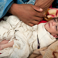 Afghan Turk clinic , Taloqan. A sick malnourished baby.