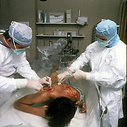 Burn Unit, cleaning wound on burn victim Intensive Care in Medical Center, NYC