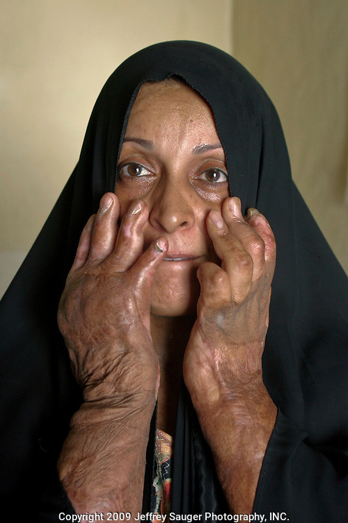 """"""" I thought this was the end of my life,"""" recalls Naddwa Hashem, 38, as she shows the injuries inflicted to her hands during an attack by Iraqi forces in 1991 on the village of Suq ash Shuyukh, about 20 miles southeast of Nasiriyah, Iraq, Sunday, August 3, 2003. """"Right away, I knew we had no money for surgery, Iraq was in a war and my company (she's an English teacher) couldn't pay for it. Many people have died from the same thing. I thought it was the end.""""..Opposition forces from Nasiriyah, a Shiite stronghold, held off Iraqi forces for 21 days. When it became apparent that U.S. forces were not going to help fight the Iraqi forces, Saddam ordered large numbers of troops to crush the uprising. An Iraqi bomb exploded in Hashem's house, her clothes caught on fire and her hands were horribly burned...In 1991, she had two surgeries but, was unable to complete her treatment because she and her husband Hussein Al-Banaa couldn't afford it after already spending 1 Million Iraqi Dinar...Hussein Al-Banaa is Malik Al-kasid's brother-in-law. His family now lives in the house Al-kasid's family fled after the Gulf War and their part in the uprising against Saddam Hussein in 1991."""