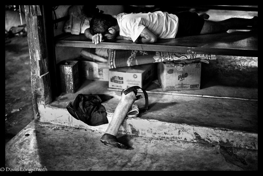 An ethnic Karen Landmine victim as he rests at the Mae La refugee camp near Mae sot, Thailand.  (Photo by David Longstreath)