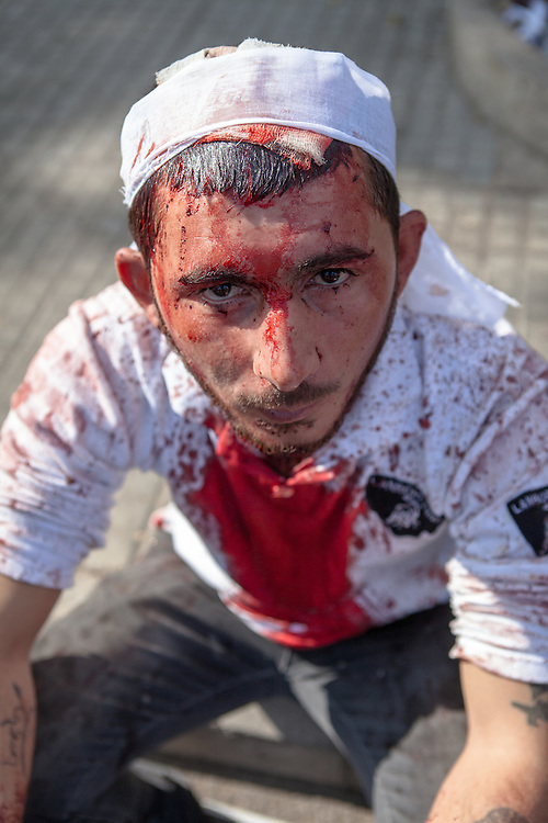 Shiite muslim man covered in his own blood, during the Day of Ashura, Nabatieh, Lebanon (November 14, 2013). Wounds were self-inflicted by using a traditional sword. During Ashura Day, some shiite muslims practice the ritual of self-flagellation to mourn the death of Husayn Ibn Ali, grandson of the prophet Mohamed.