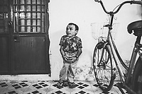 A portrait of Nguyen Ngoc Phuong,31, an employee of the Danang Association of Victims of Agent Orange (DAVA) school in Danang, Vietnam, taken on August 8, 2012. Phuong's stunted height and malformed bones could have been caused by Agent Orange used during the American War in Vietnam.