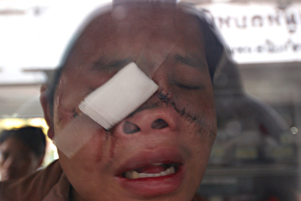 "Tong Her in an ambulance during tense scenes at the Nong Khai Immigration Detention Center as authorities threatened to deport 152 Hmong refugees back to Laos, Nong Khai, Thailand, on Tuesday January 30th, 2007. Tong has been recieving reconstructive surgery in Thailand and was being taken from the Dention Center to Nong Khai Hospital for treatment. Half of Tong's face was shot off by Lao Army forces in the jungles of Laos.  ..The deportation was postponed after the Hmong men, including Tong's father, Blia Shoua Her, barricaded their jail cell and threatened mass suicide if they were forcibly sent back to Laos where they face possible torture and death.  ..The men reportedly declared, ""We would rather die in Thailand than be sent back to Laos"".  ..On May 16, 2007 the Thai Military Junta forced the UNHCR Bangkok refugee office to stop accepting applications from asylum seekers.  On Friday night June 8, 2007, after UNHCR and western diplomats had gone home for the weekend, Thai authorities forcibly deported a different group of 160 Hmong asylum seekers to back Laos...Up to 1,000 Hmong jungle people surrendered to Lao authorities last year due to Lao Military pressure, an inability to defend themselves, and lack of food or medicine.   This includes Blia Shoua Her's group of 438 people who suffered the massacre April 6, 2006.  All of these Hmong have vanished and the Lao Government has made no account of their whereabouts or condition despite requests from humanitarian groups."