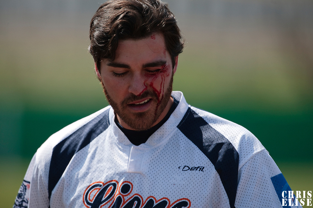 18 April 2010: Tim Stewart of Savigny is seen with blood on his face as he hurts himself on a catch against the green wall on left field during game 1/week 2 of the French Elite season won 8-1 by Savigny (Lions) over Senart (Templiers), at Parc municipal des sports Jean Moulin in Savigny-sur-Orge, France.
